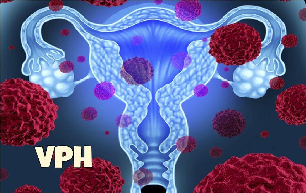 virus del papiloma humano cancer de utero cancer maxilar simptome