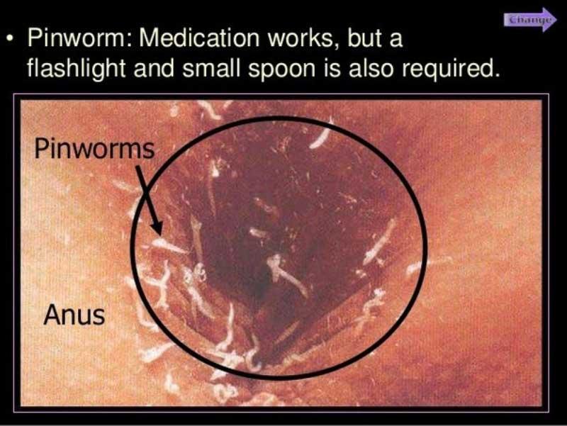 tratamente oxiuri squamous cell papilloma under tongue
