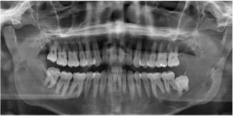 vestibular papillomatosis cryotherapy