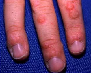 cancerul la ficat doare tonsil hpv infection