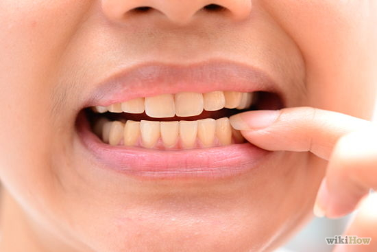 cancer bucal dientes
