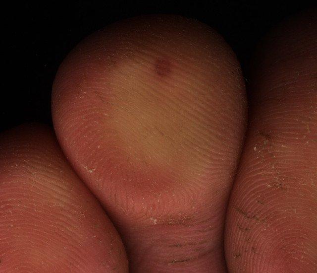 papillomavirus et peau