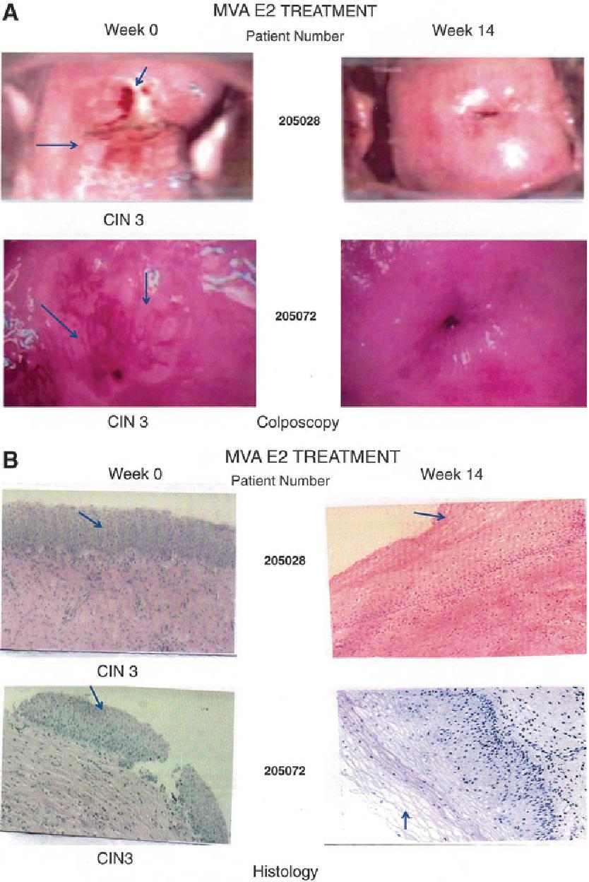 human papillomavirus lesions cervix