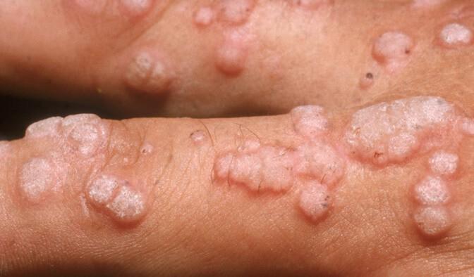 tratament papiloma virus uman
