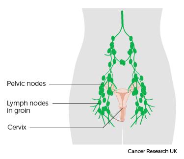 uterine cancer jaundice