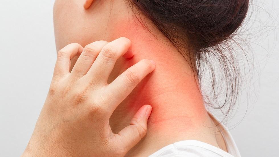 dermatite exfoliative - Traducere în română - exemple în franceză | Reverso Context