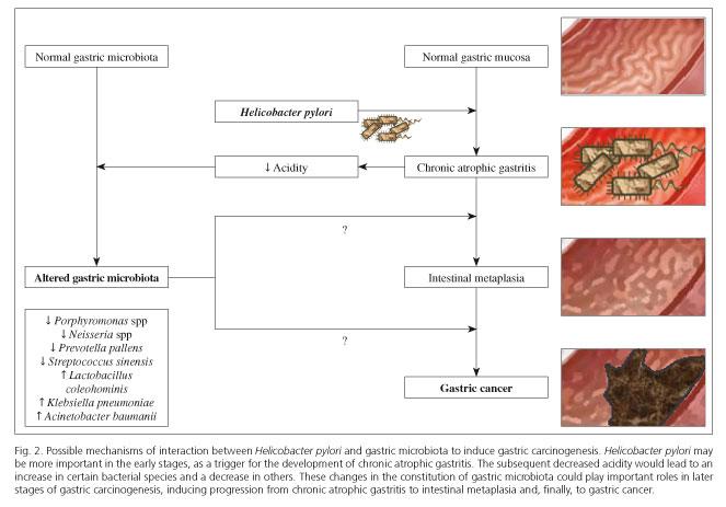 Cum se ajunge de la inflamatie la cancer gastric? | Medlife