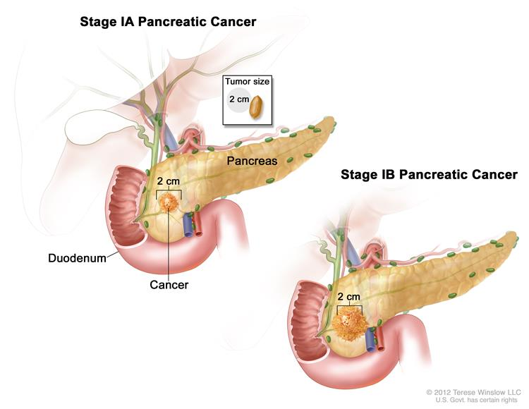 wart removal home remedy duct tape cancerul de colon la ce varsta apare