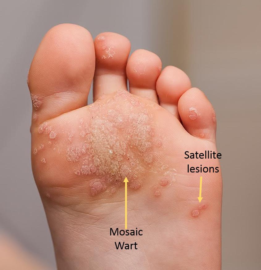 wart on under foot cancer la sange simptome