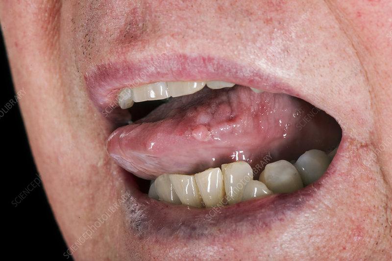 hpv warts under tongue