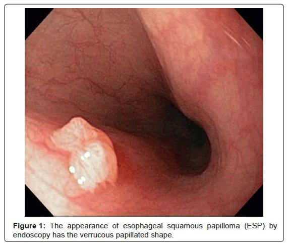 squamous papilloma cancer cheloo cronica unei senilitati
