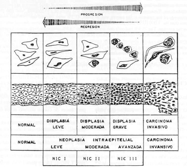 virus del papiloma causas cancer la unghie