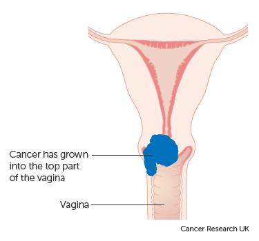 cervical cancer uk apa calda cu lamaie detoxifiere