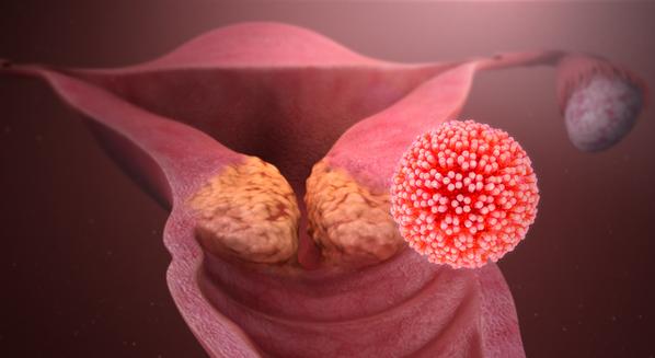 hpv papillomavirus tratament foot wart with hole