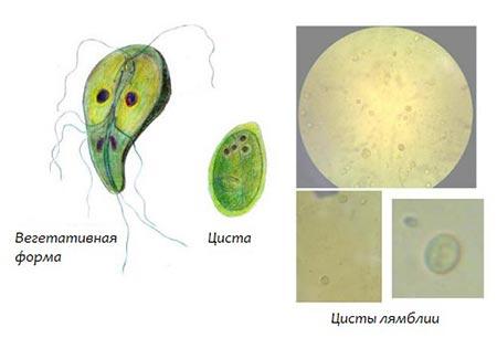 che sintomi da il papilloma virus human papillomavirus infection cause