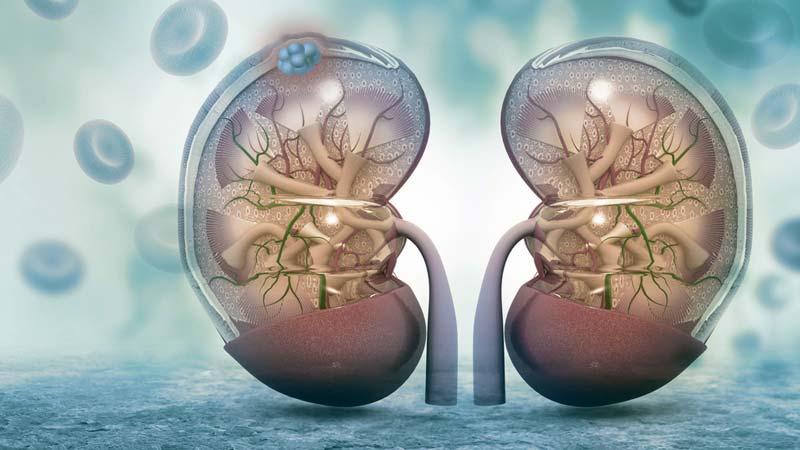 cancer renal pronostico