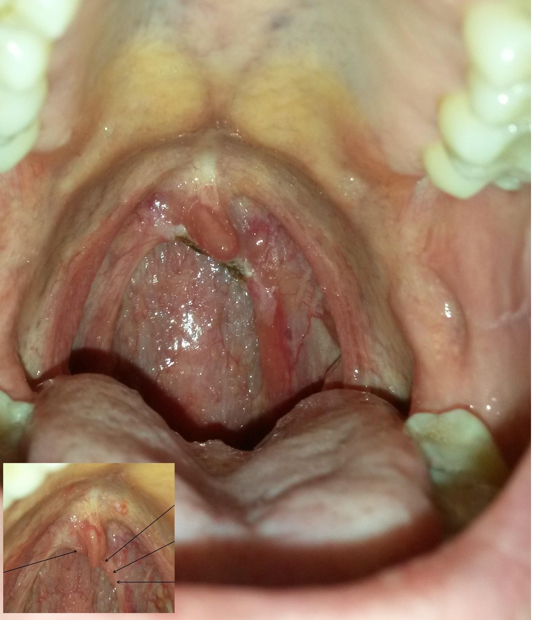 papilloma virus e laser