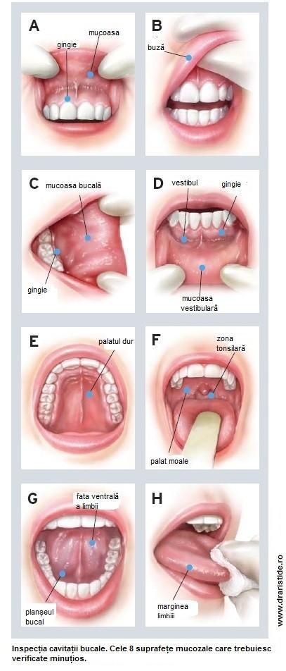 cancer buze simptome