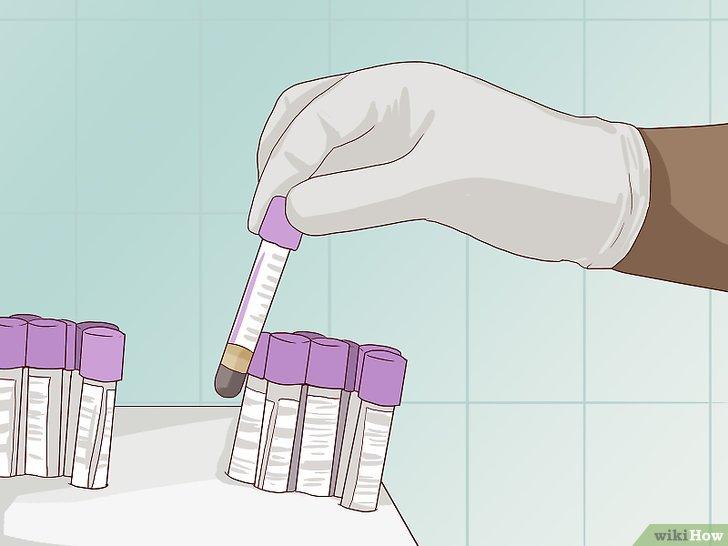 papilloma virus test uomo hirsutoid papillomas causes