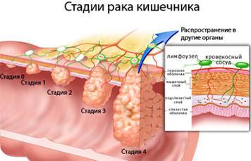 cancer de colon etapa 4