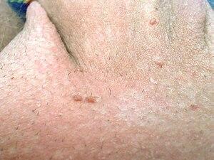 Papiloma pe cap în păr provoacă tratament