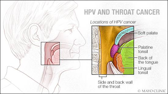symptoms of head and neck cancer caused by hpv