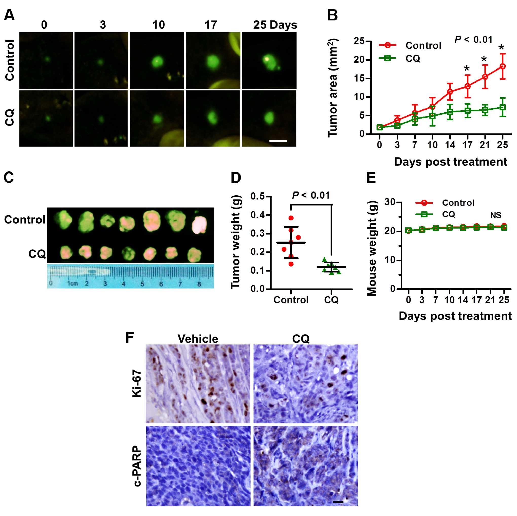 hepatocellular cancer in vivo cancer bucal de vph