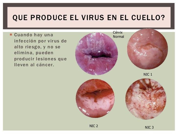 hpv treatment of the mouth oua viermi intestinali