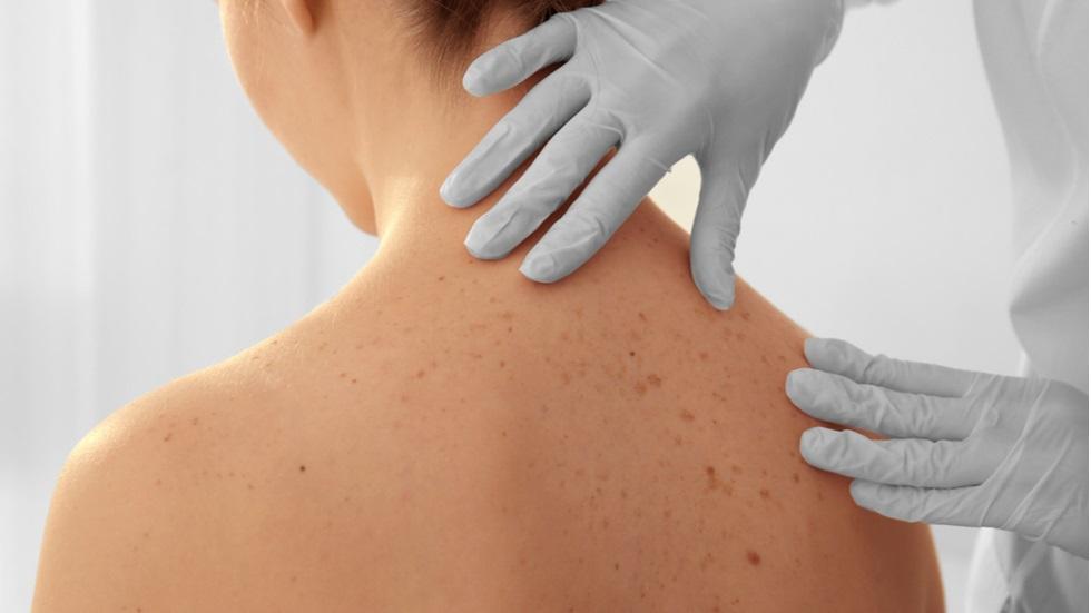 cancer de piele varsta