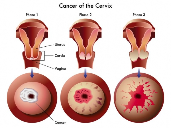 gastric cancer first stage hpv vaccine jb