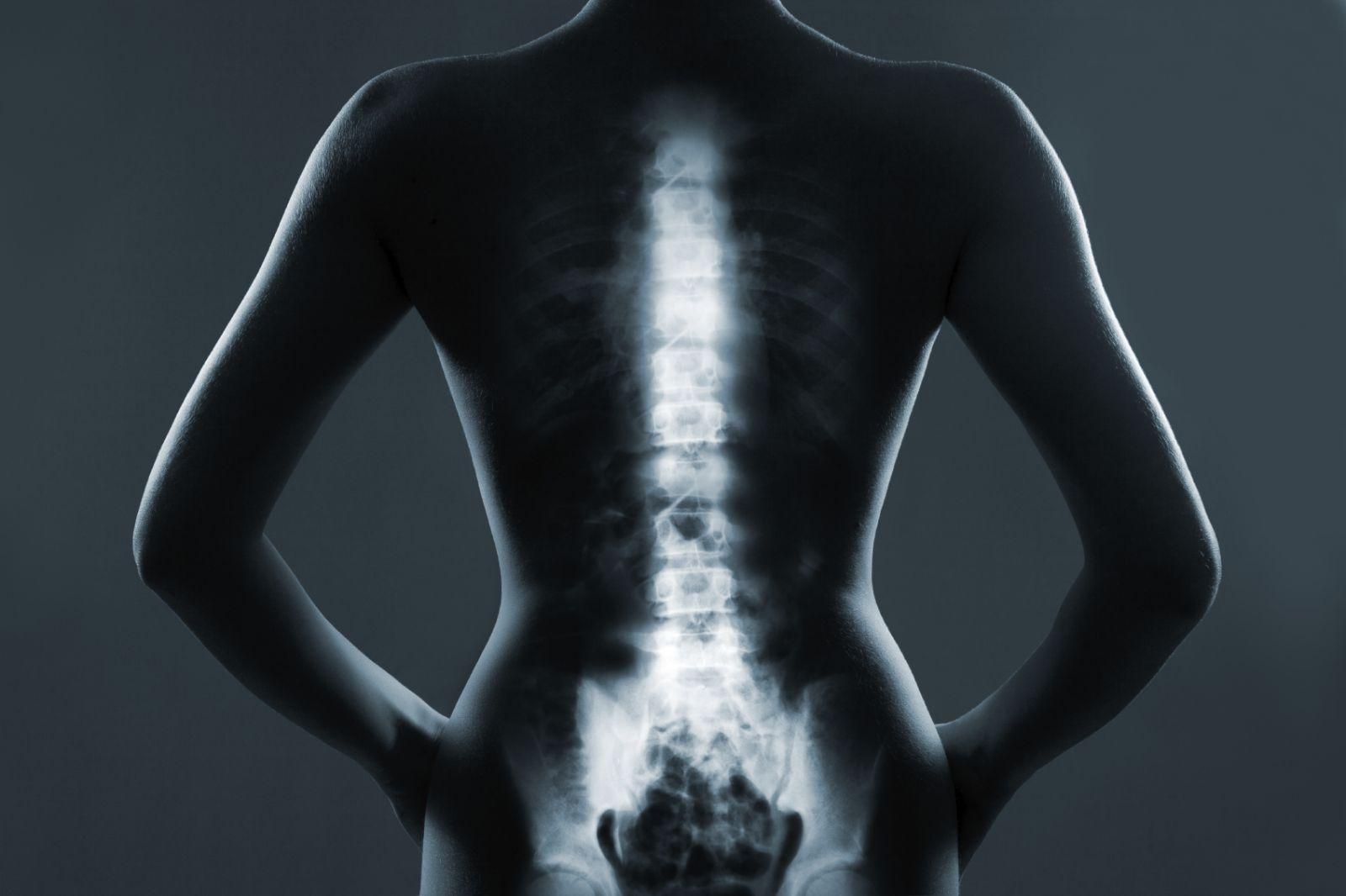Revista Urologia » bone metastasis