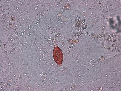 analize depistare paraziti intestinali