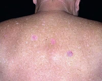 Tipuri de cancer de piele