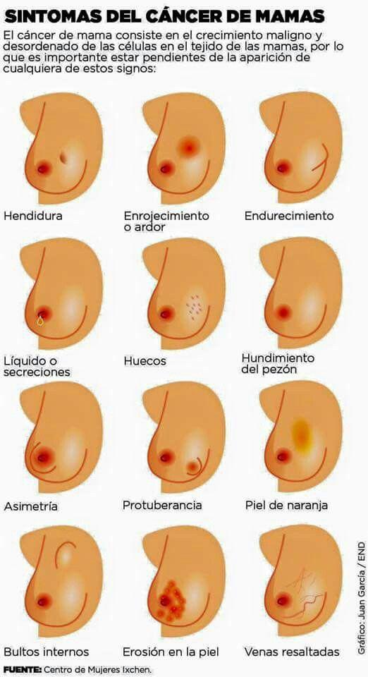 virus del papiloma senos