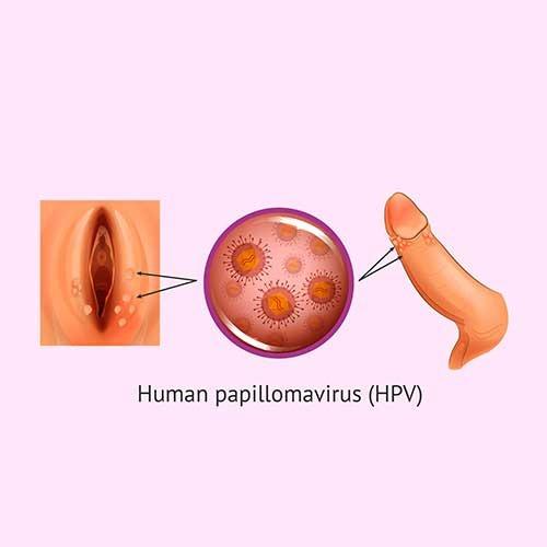 papilloma virus treatment