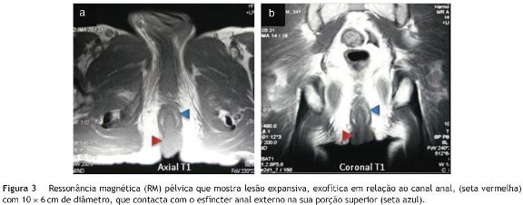 papiloma anorectal neuroendocrine cancer in breast