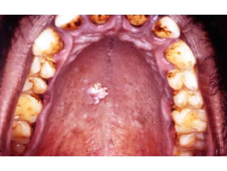 Cancerul amigdalian