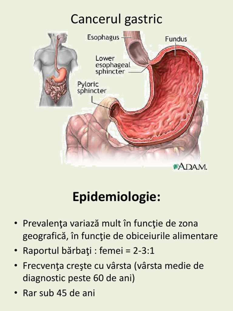 Cancer gastric