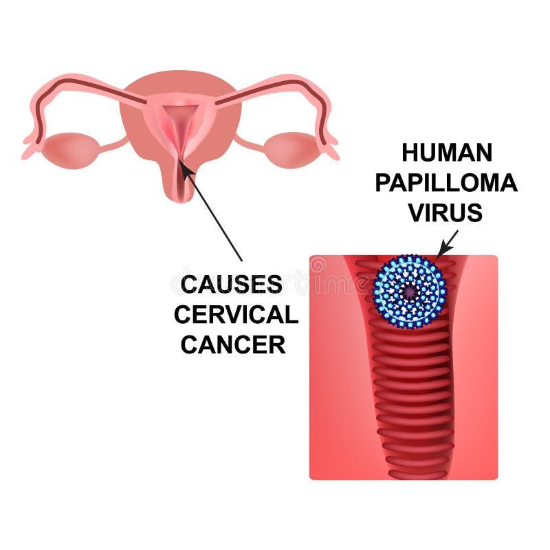 papilloma vescicale cause hpv vaccine gsk