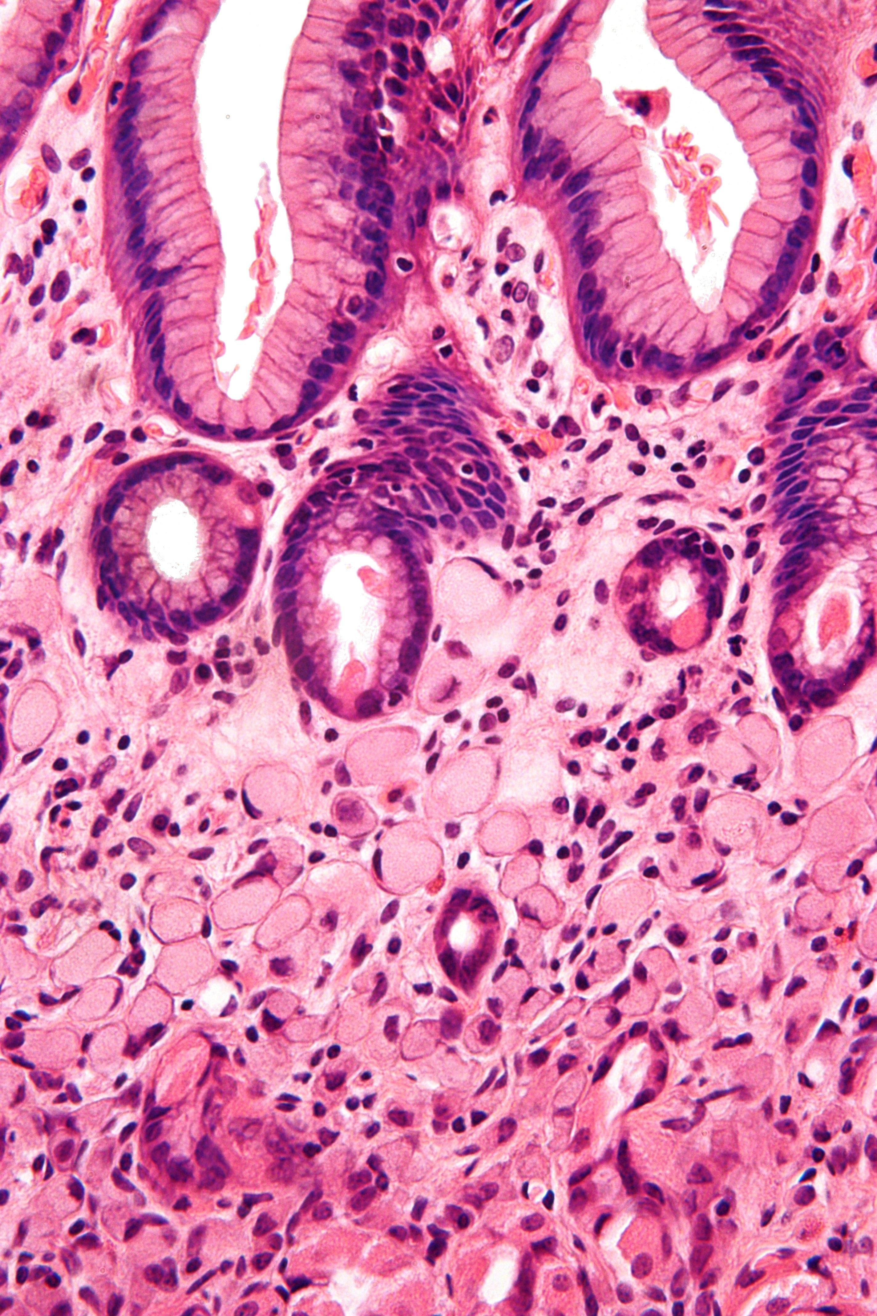 cancer gros intestin causes