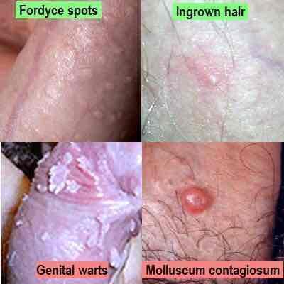 hpv warts vs pimples simptome la paraziti