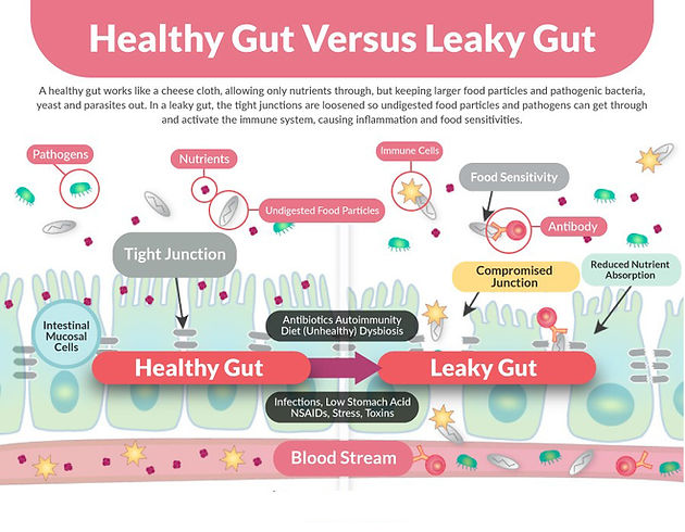 Gestionarea Sindromul Gut indiscret si psoriazis