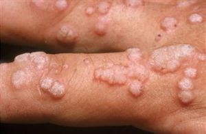 condyloma acuminata mode of transmission human papillomavirus (hpv) detection