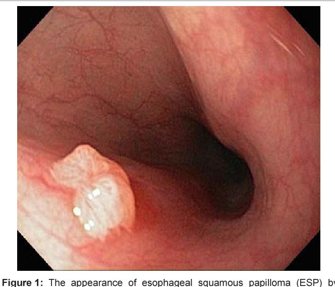 schistosomiasis cancer