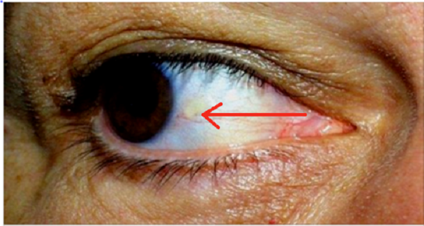 virus papiloma humano recomendaciones orez crud detoxifiere