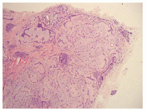 papillary sclerosing lesion breast