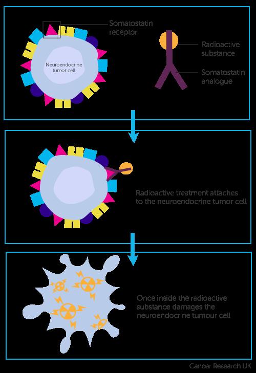 neuroendocrine cancer prrt