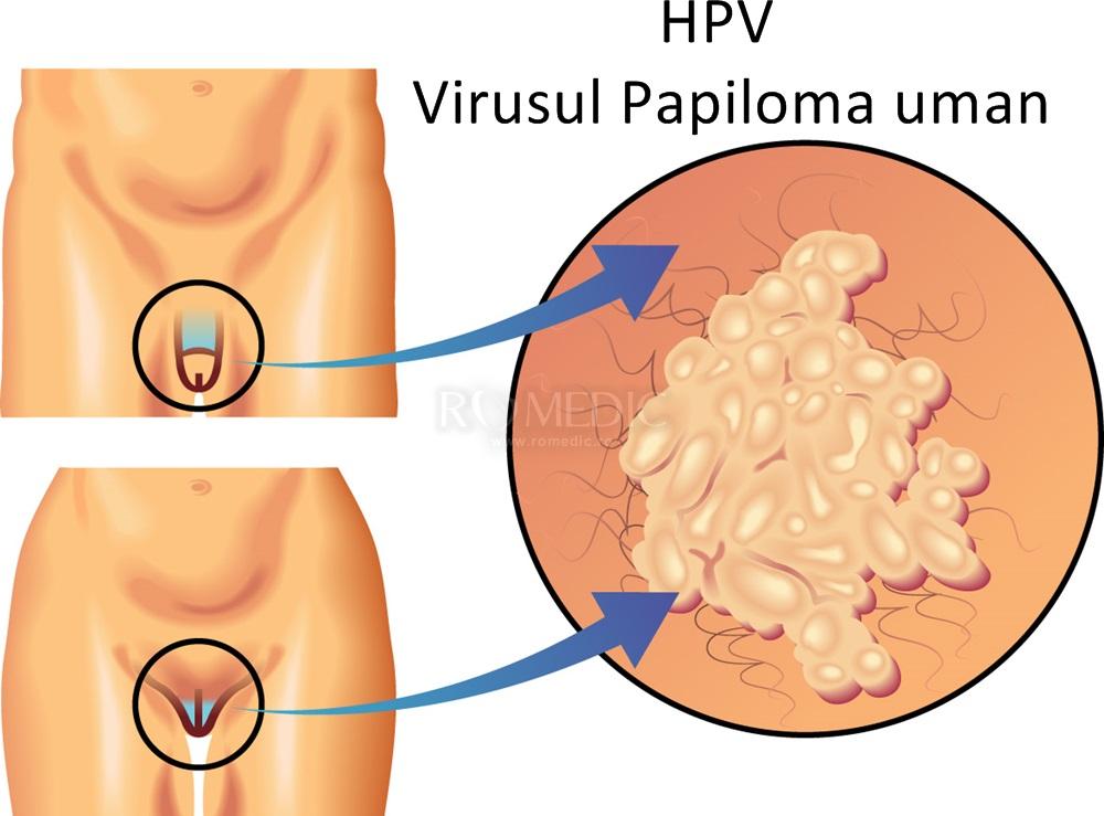 papilomavirus uman copii