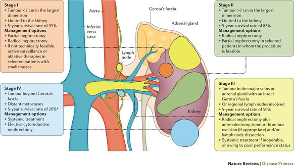 renal cancer lymph nodes
