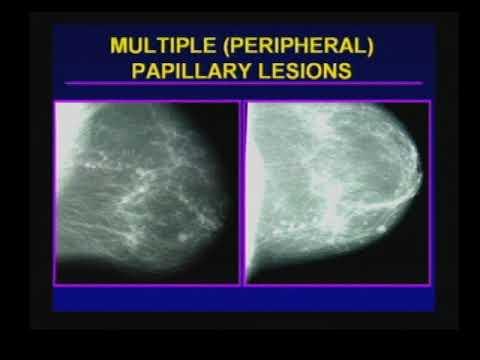 papillary lesion treatment papillary thyroid cancer tall cell variant pathology outlines